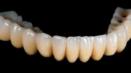 پرینت سه بعدی دندان